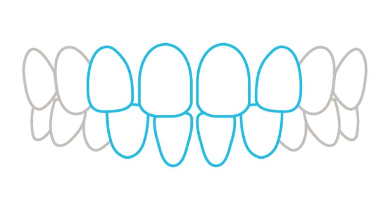 歯の症状例