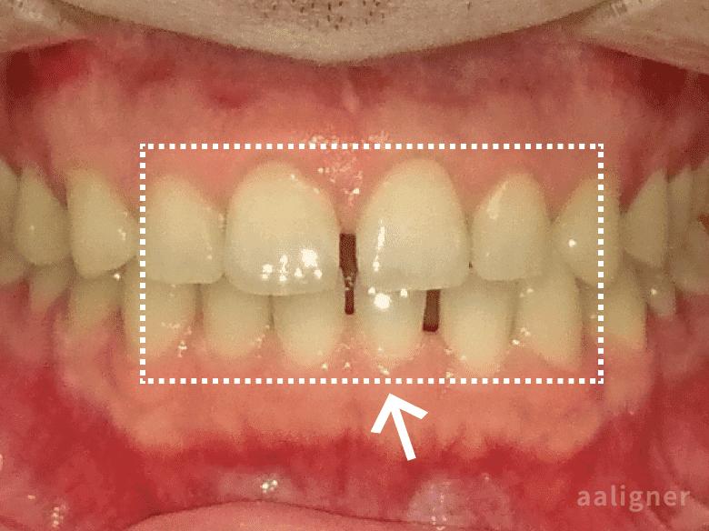 前歯のすきっ歯、隙間の以前の画像