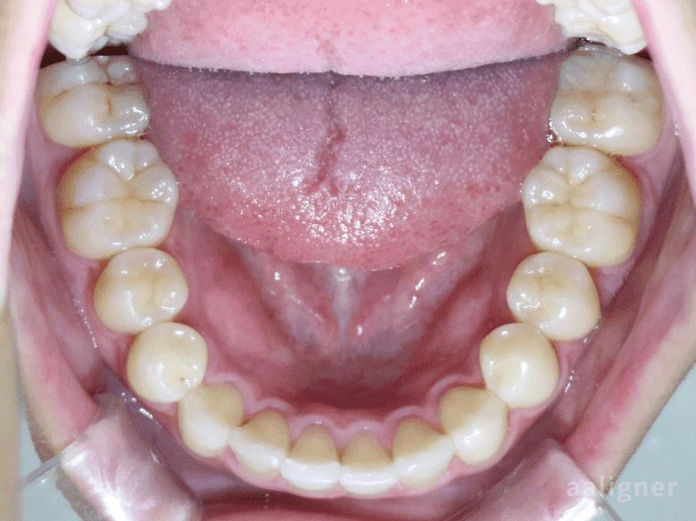 下の歯の重なりの治療後の画像