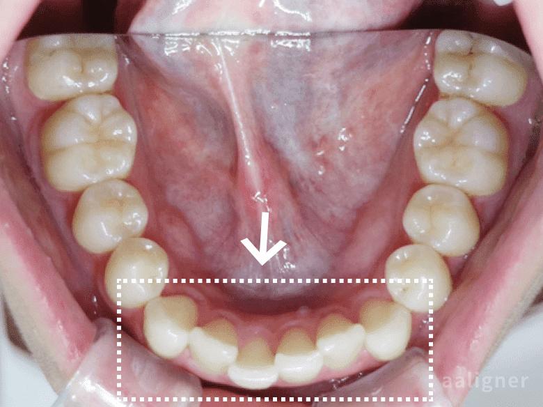 下の歯の重なりの以前の画像