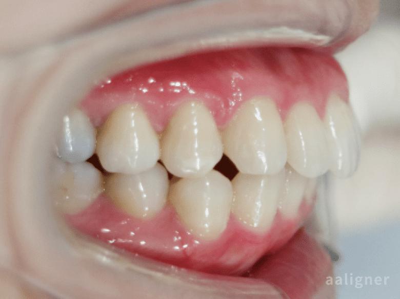 上の歯の出っ歯の治療後の画像