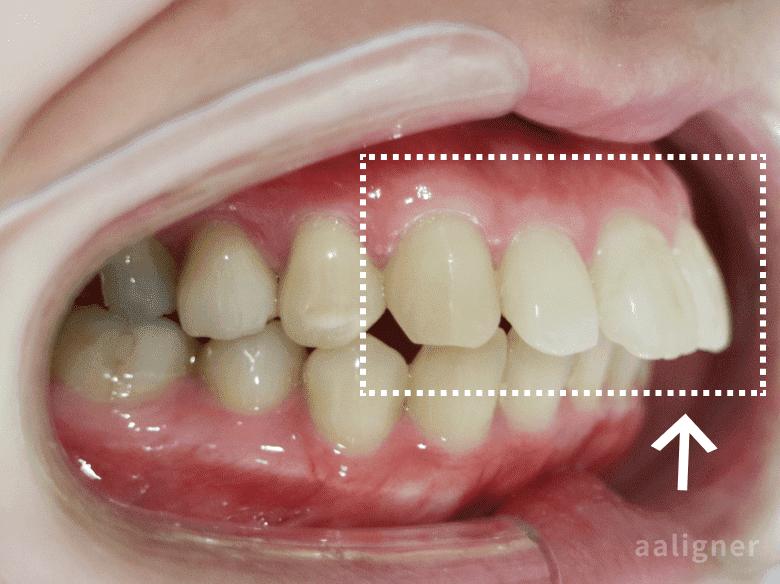上の歯の出っ歯の以前の画像
